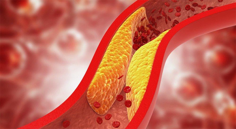 gefaesserkrankung-impotenz-erektionsstoerung-erektile-dysfunktion-blut