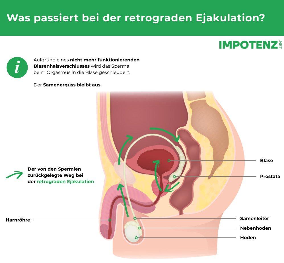 anejakulation-retrograde-ejakulation