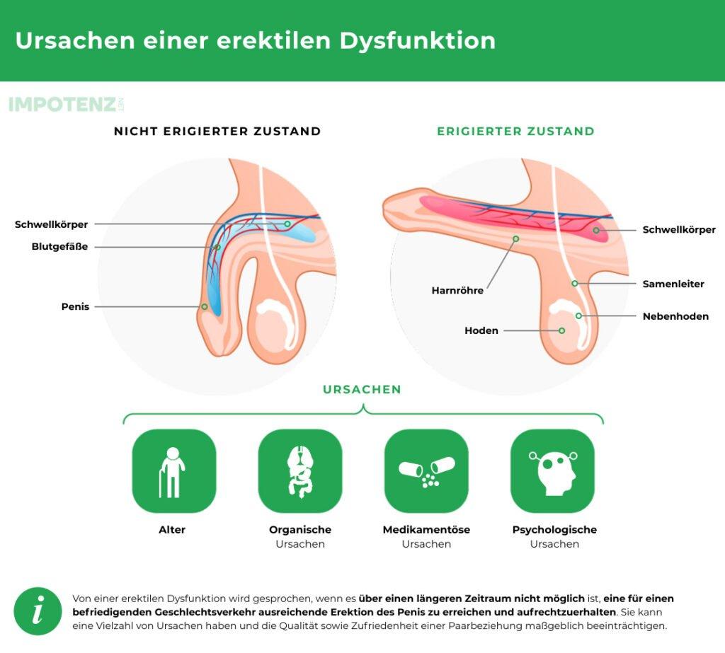 erektile-dysfunktion-ursache
